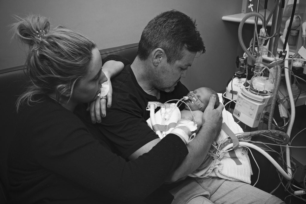 A couple holding their baby who has CDH